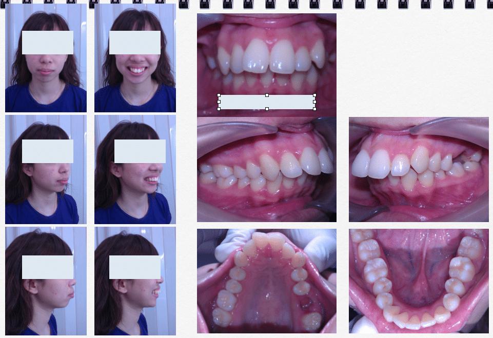 ก่อนการรักษา cl.1