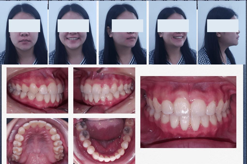 หมุดจัดฟัน เรียนจัดฟัน หลังการรักษา