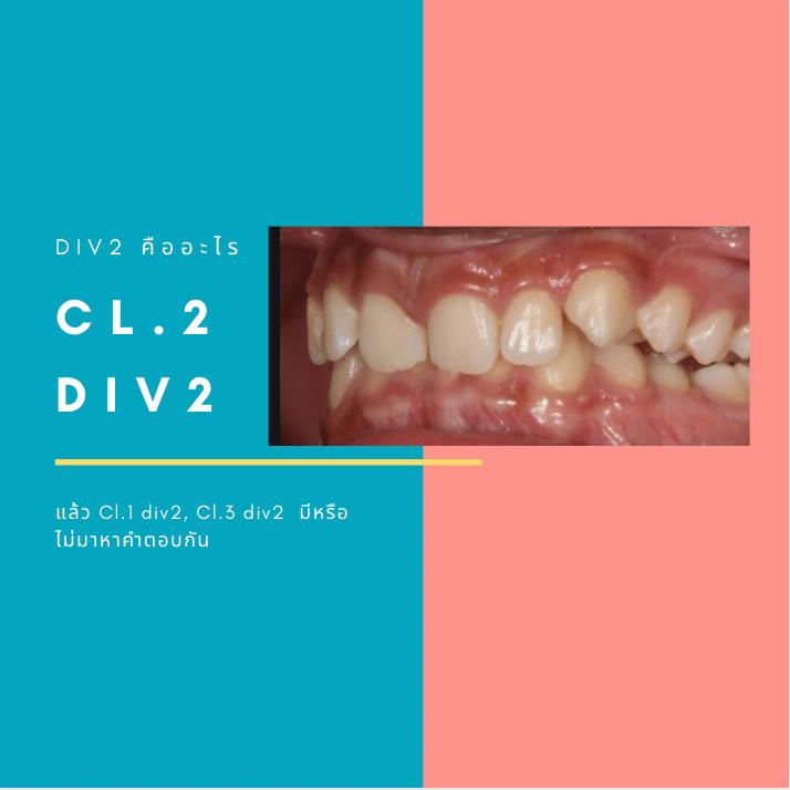cl.2 div2 คืออะไร หน้าปก